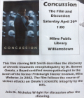 Concussion-showing